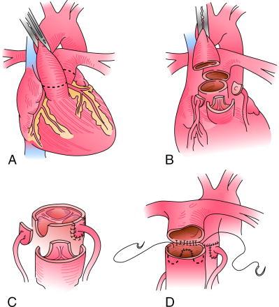 Схема операции Жатене