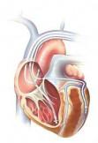 Сердечная ресинхронизирующая терапия