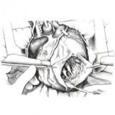 Хирургическое лечение аневризмы левого желудочка